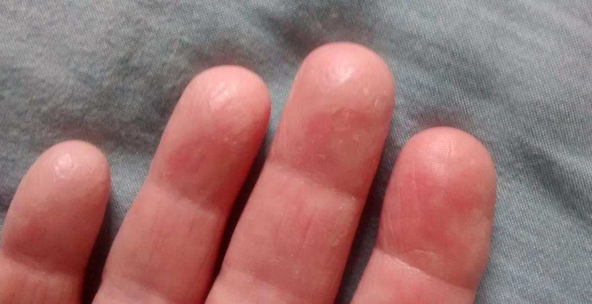 Chapped, cracked, painful fingers - Homeopathy InspiringCases