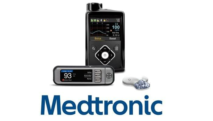 medtronic insulin pump and CGM to regulate type 1 diabetes blood sugar and insulin delivery