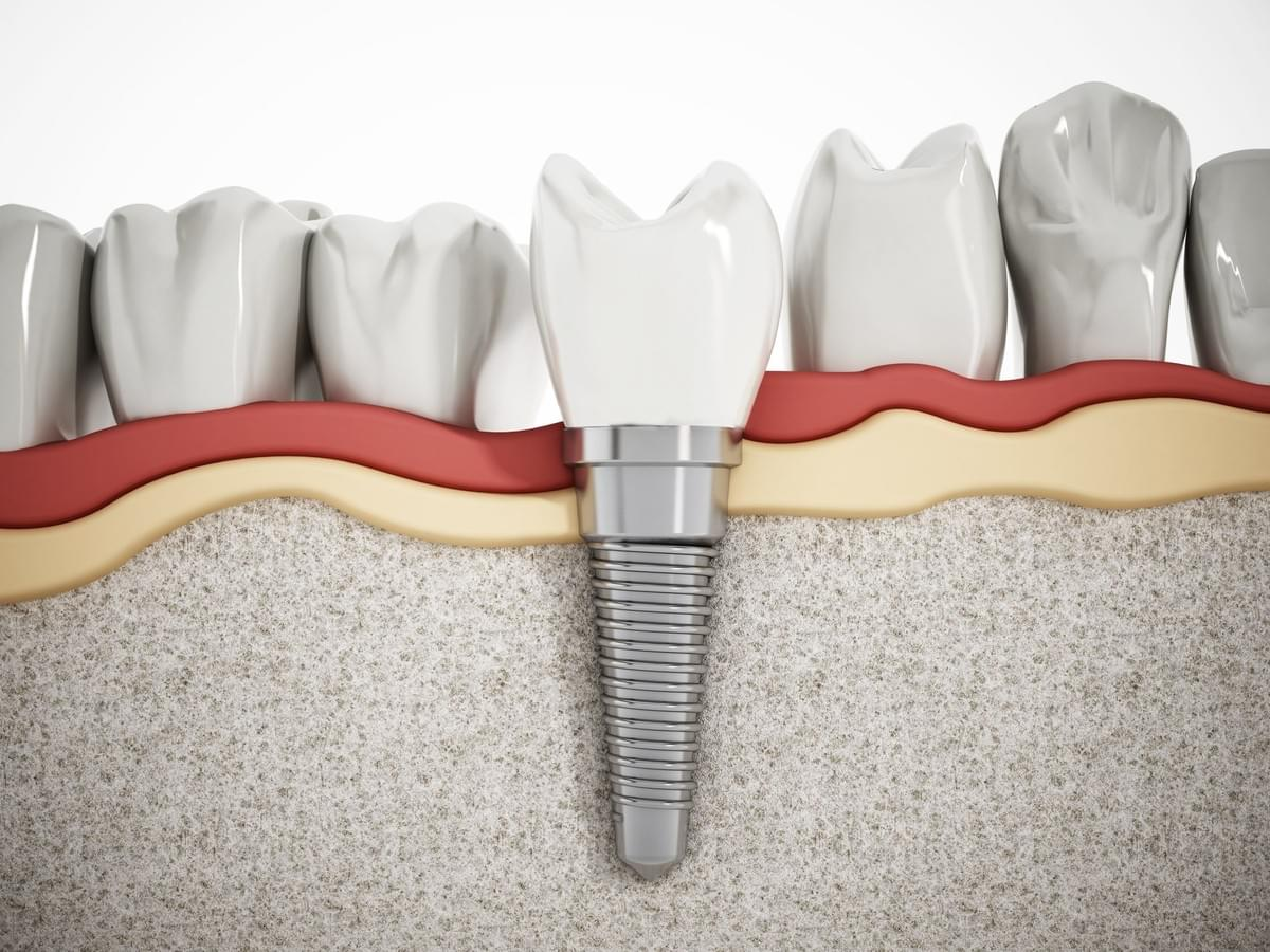 Mullingar Dental Center - Implants