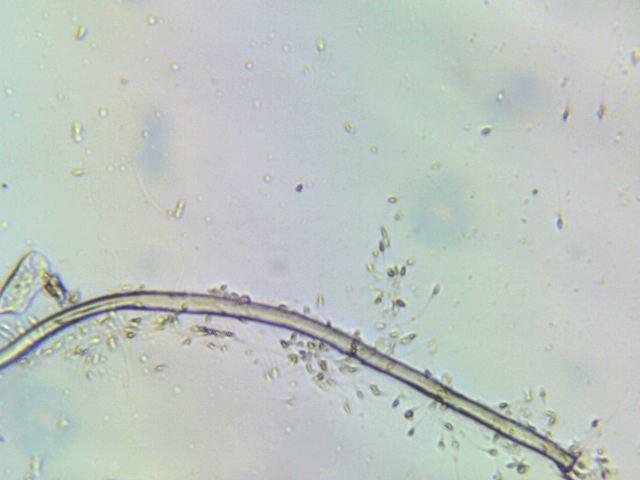 Female schistosomiasis worm in semen sample of infected male.