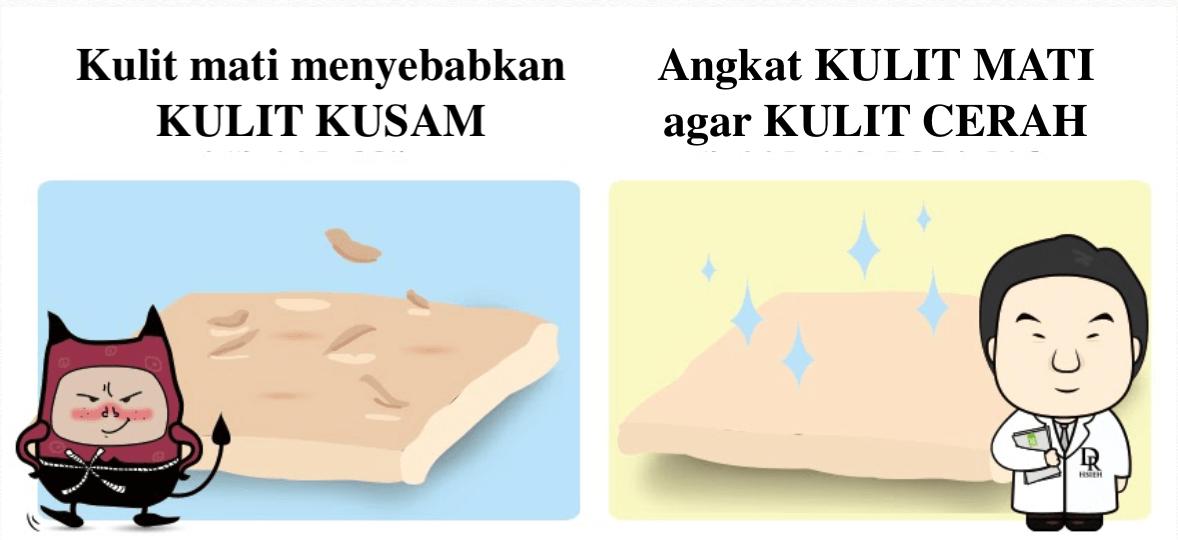 Mandelic Acid mengangkat kulit mati