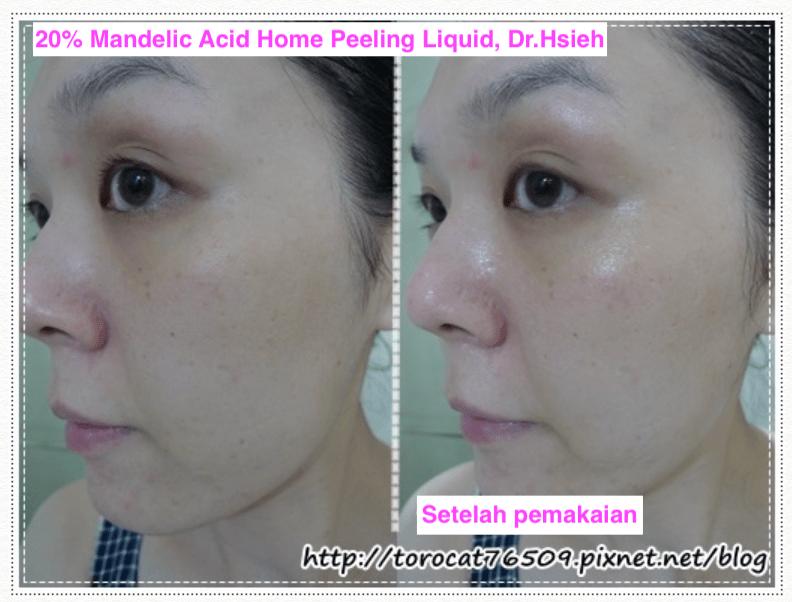 Setelah pemakaian Mandelic Acid Dr.Hsieh