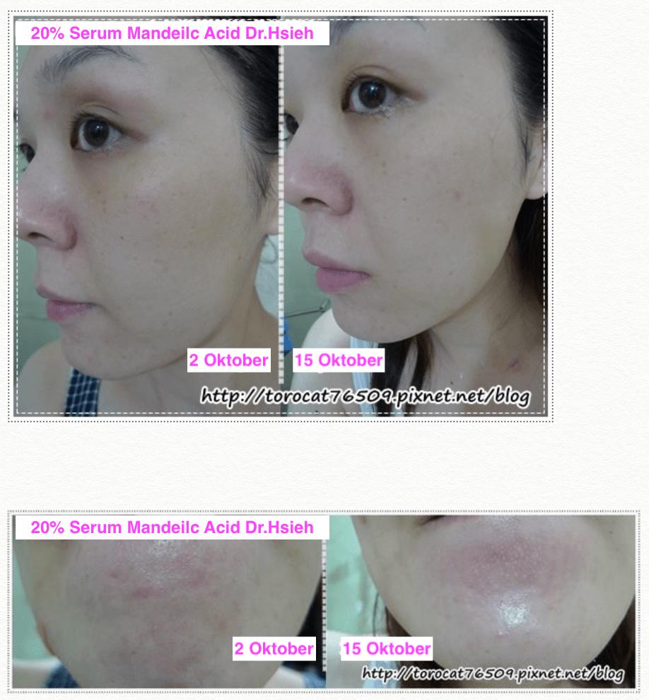 Hasil pemakaian Serum Mandelic Acid Dr.Hsieh