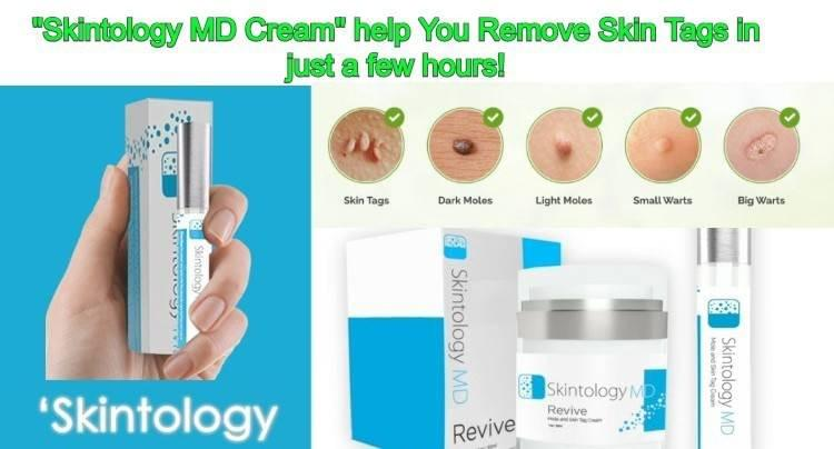 Skintology MD Reviews - Is it a Scam or Legit?