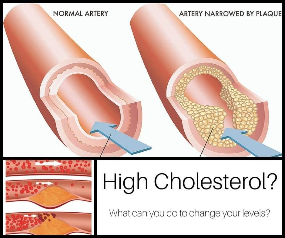 Artery walls narrowed by plaque build up - high cholesterol