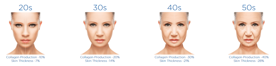 BTL Exilis Ultra Skin Tightening
