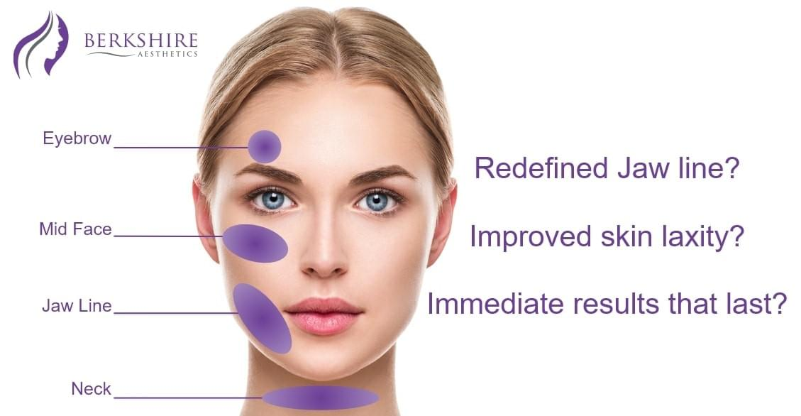 silhouette soft thread lift face