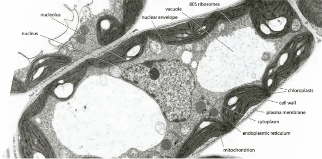 Labelled electron microscope photograph of a plant cell