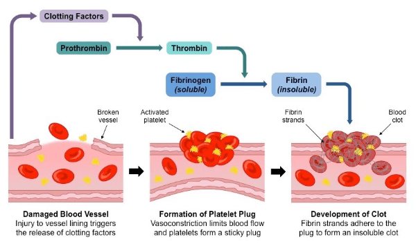 Steps involved in blood clot formation.