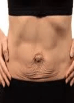 Mother with Diastasis Recti showing what it looks like