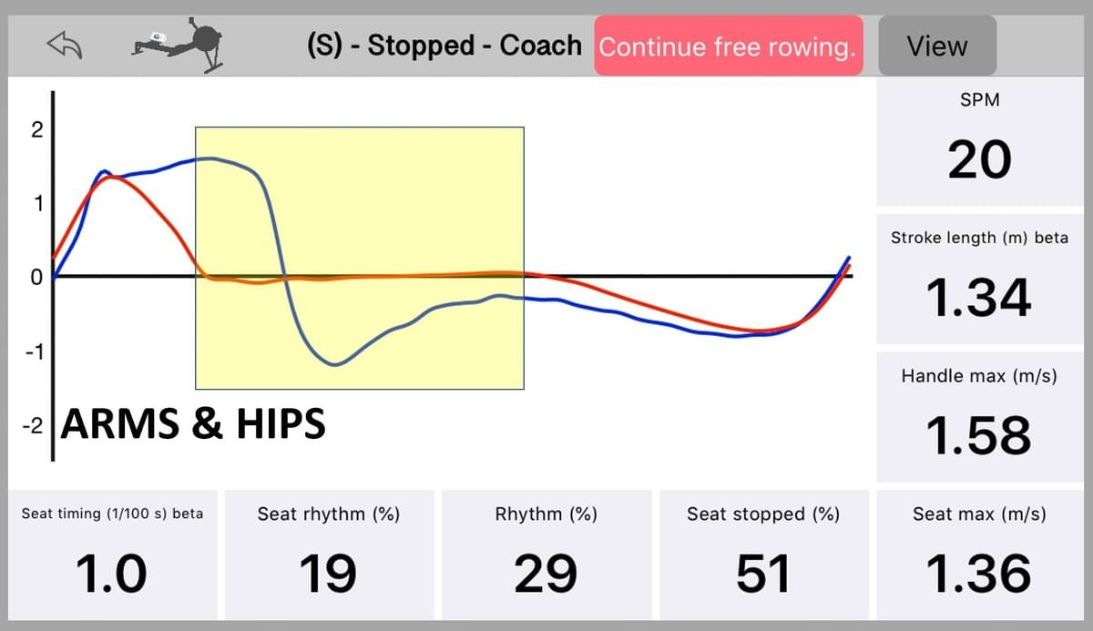 Seat and handle speed as measured with Quiske: Arms&Hips portion colored yellow.