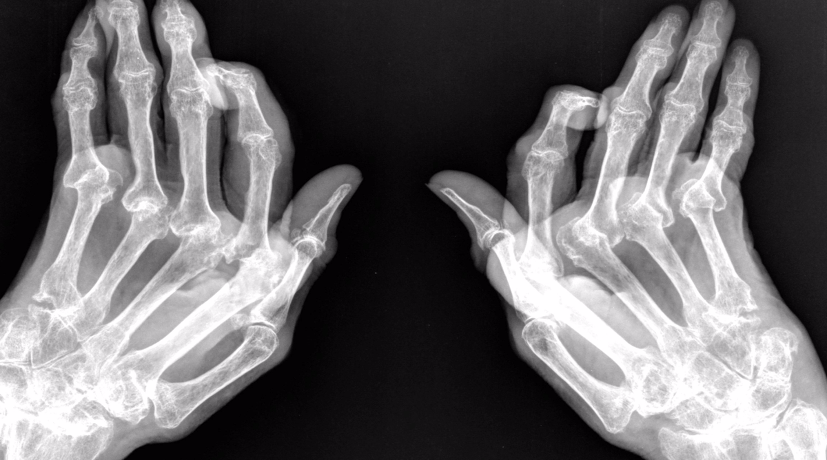 Image result for reumatoide artritis