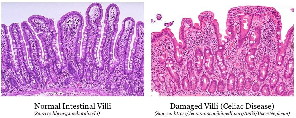 Showing a Healthy gut and a damaged gut. We require healthy villi for absorbing nutrients